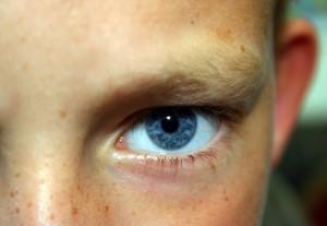 Красные точки вокруг глаз