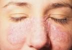 покраснение и шелушении кожи