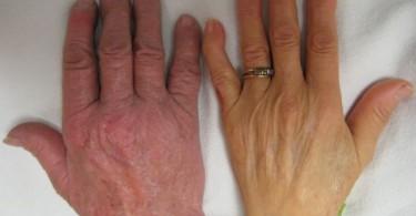 руки при гипохромной анемии