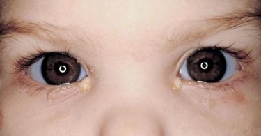 гной в глазах у ребенка