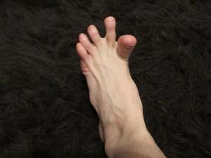 Судорога пальцев ног