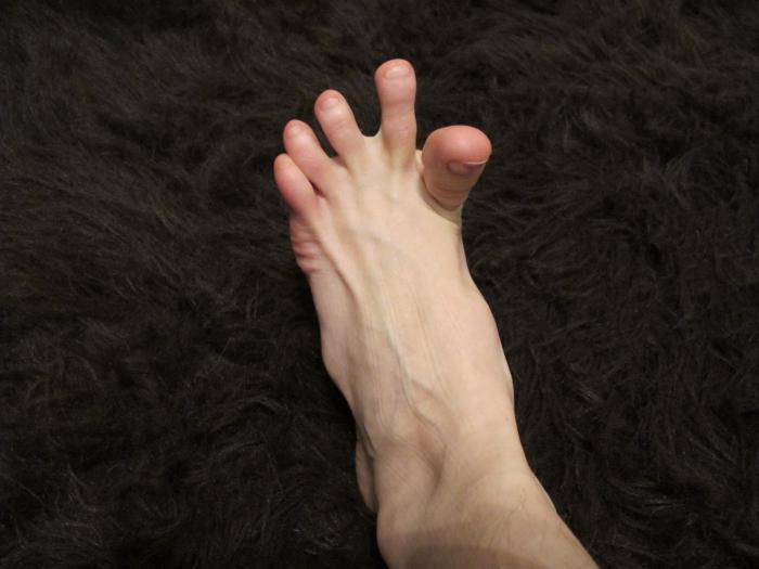 Почему судорога сводит пальцы на ногах
