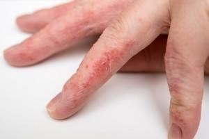 Шелушение на пальцах