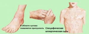 Симптомы ЮРА