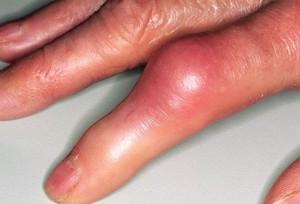 Инфекционно-аллергический артрит