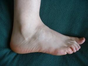 Лечение артрита стопы ног
