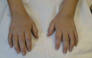 Что такое ювенильный артрит у детей (ЮРА)