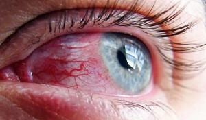 у ребенка красные глаза