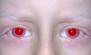 красный цвет глаз