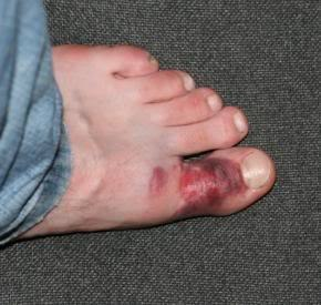 боль в большом пальце ноги причины