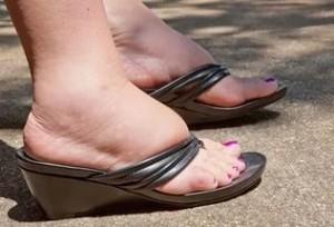 жжение стоп ног причины