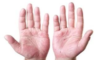 зуд между пальцами рук