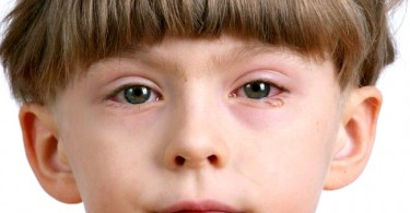 красные глаза у ребенка причины