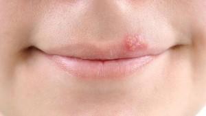 тетрациклиновая мазь от герпеса на губах
