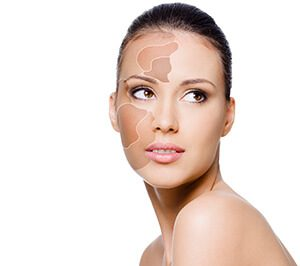 салициловая кислота от пигментных пятен на лице