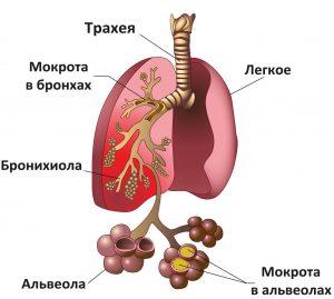 пневмония гипостатическая