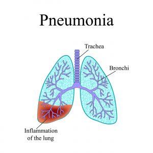 прикорневая пневмония симптомы и лечение у взрослых