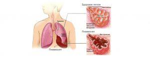 пневмония заразна ли для окружающих