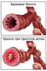 при бронхиальной астме затруднен вдох или выдох