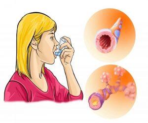 бронхиальная астма аллергическая