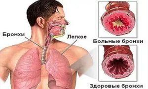 реабилитация больных с бронхиальной астмой