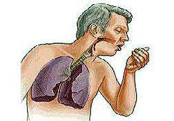 как при бронхите облегчить дыхание