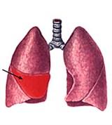 можно ли при пневмонии курить