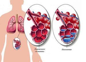 шок при пневмонии