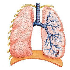 затяжная пневмония у взрослых