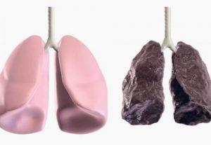 рак легких и курение