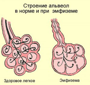 эмфизема при бронхиальной астме