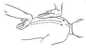 грудная клетка бронхиальной астме