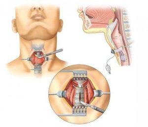 туберкулез горла