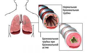 лечение профилактика бронхиальной астмы детей