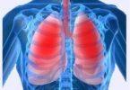 30251134-simptomy-zapuschennogo-bronhita-u-rebenka-1