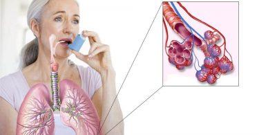 34277039-bronhialnaya-astma-pri-allergii-1