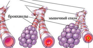анализ мокроты при бронхиальной астме