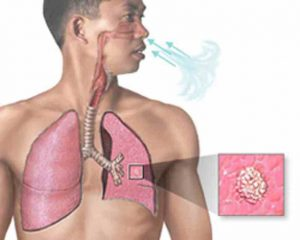 химиопрофилактика туберкулеза у детей