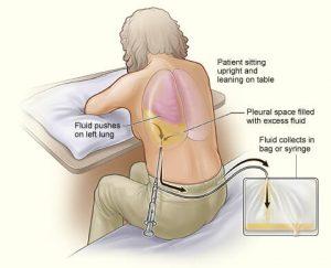 пункция при гемотораксе