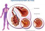 эндогенная бронхиальная астма