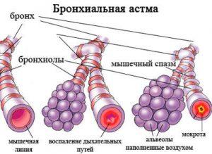 осложнения бронхиальной астмы лечение