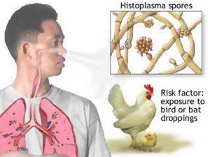 гистоплазмоз симптомы