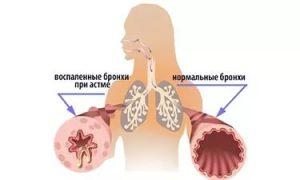 лфк при бронхиальной астме