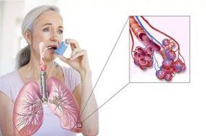 одышка приступе бронхиальной астмы