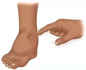отеки ног при раке легких