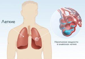 при пневмонии жидкость в легких