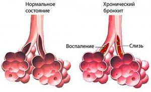 затяжной бронхит у взрослых лечение