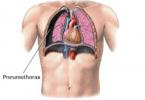 pneumothorax-ex-vacuo-1