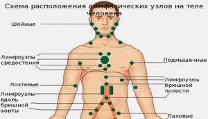 туберкулез лимфатических узлов