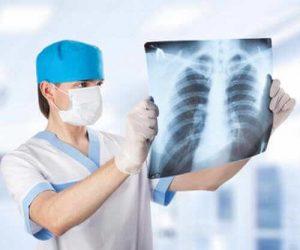 посттравматическая пневмония